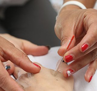 How Long Does It Take for Acupuncture to be Effective?