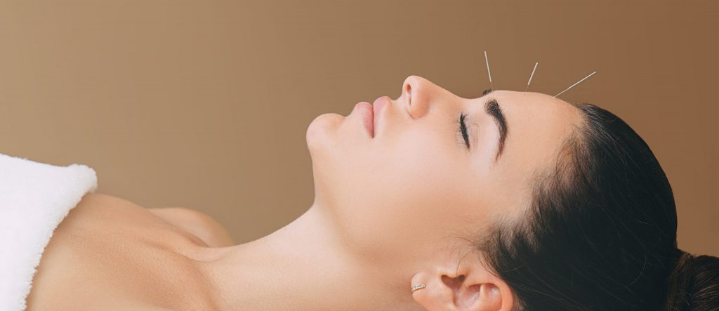acupuncture treatments for headaches and migraines