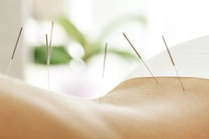 acupuncture for back pain park orchards and mount evelyn
