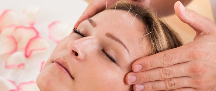 What is Acupuncture Used to Treat?