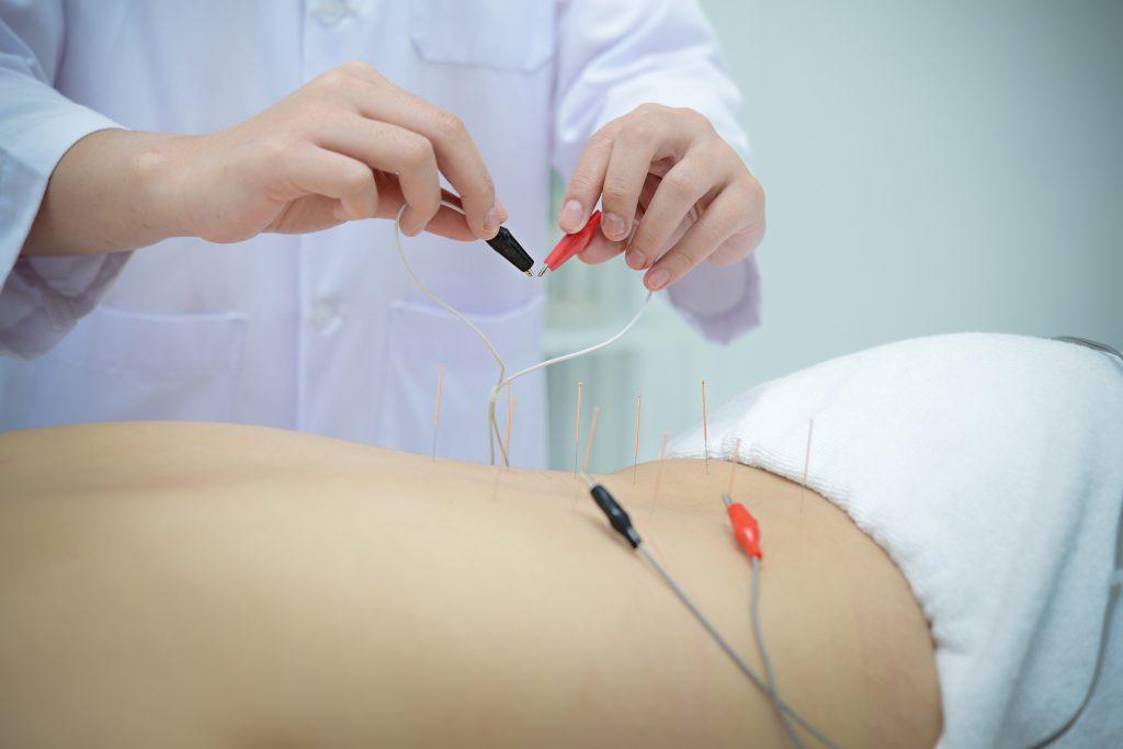 acupuncture and nerve regeneration