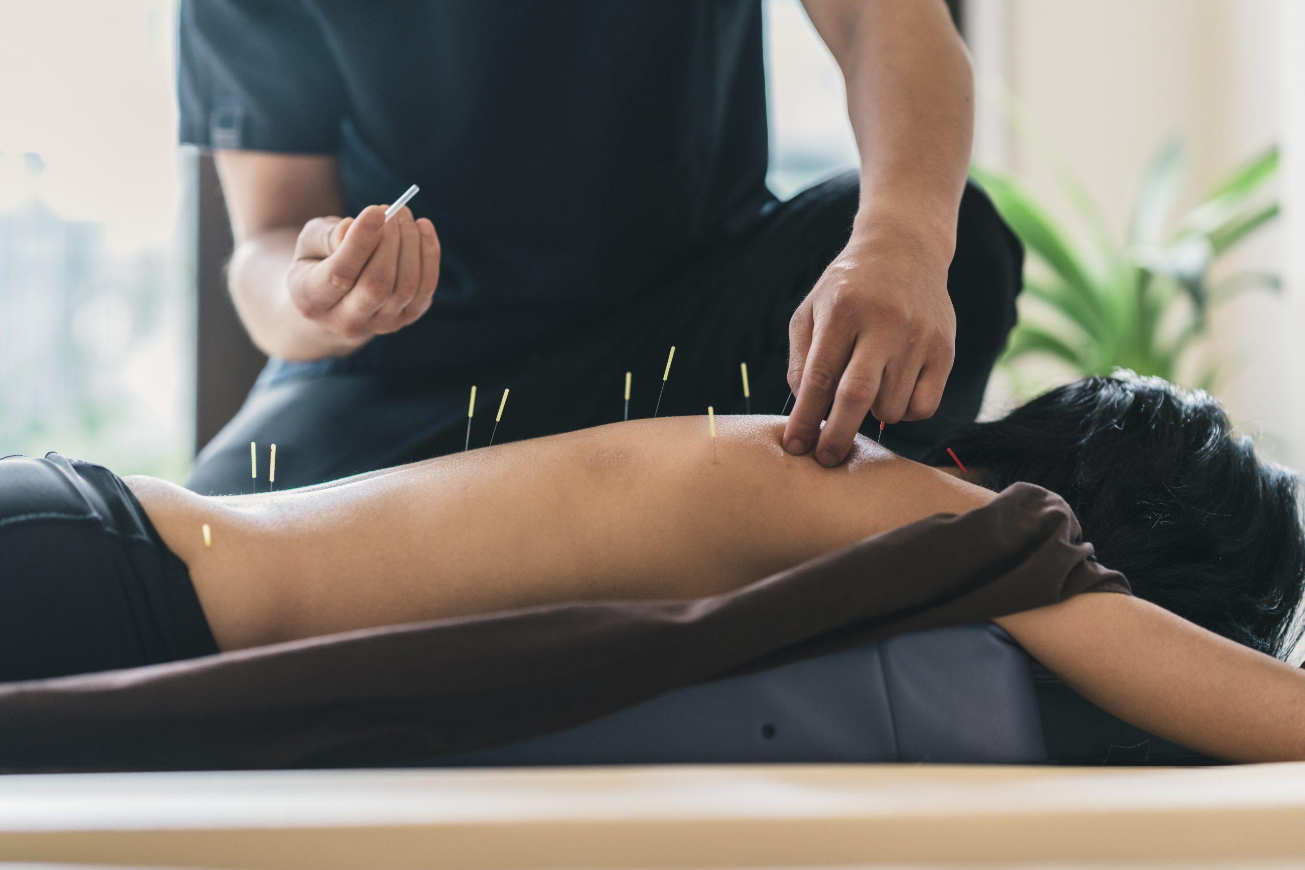 amazing benefits of acupuncture